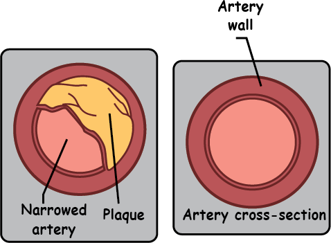 What causes acute coronary syndrome (ACS)?